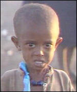 One of the millions of starving Ethiopians during the Famine of 1984-85