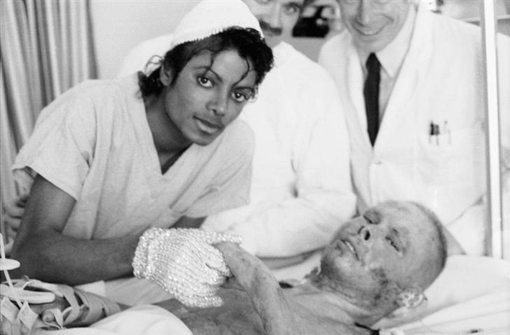 Michael Jackson: Pepsi Burn Photo | Lisa's History Room | 728 x 478 jpeg 34kB